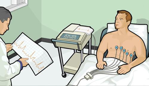 Eletrocardiograma ECG